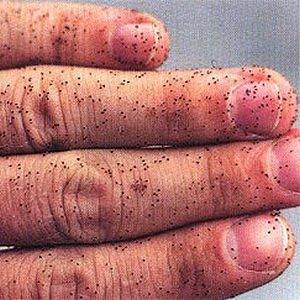 Bird mites on a human hand