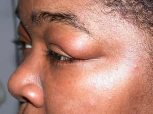 Swelling near the eyelids - sign of Chagas
